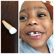 Pediatric Dentist - Mouth Guards